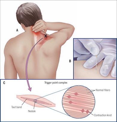 Mal di testa e dry needling