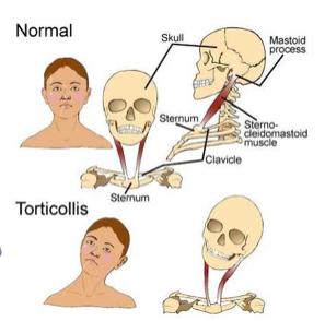 Rigidità dei muscoli del dorso e del collo - Cause e Sintomi