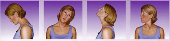 Torcicollo: il blocco cervicale acuto secondario