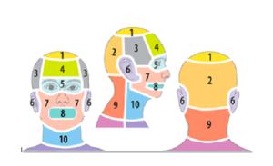 cefalea-tensiva-emicrania