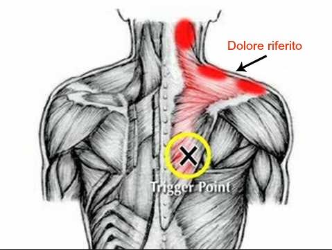 trigger point sensibilizzazione e dolore riferito